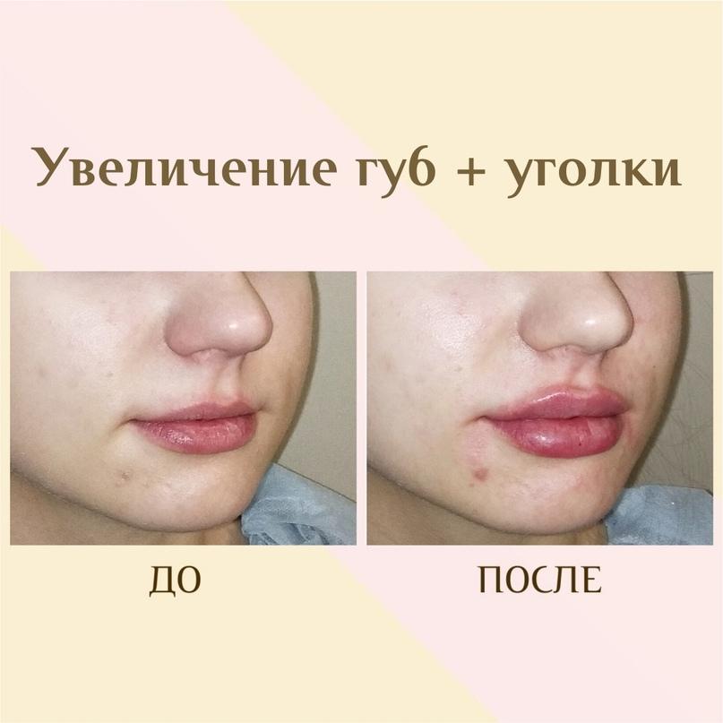 губы сразу после