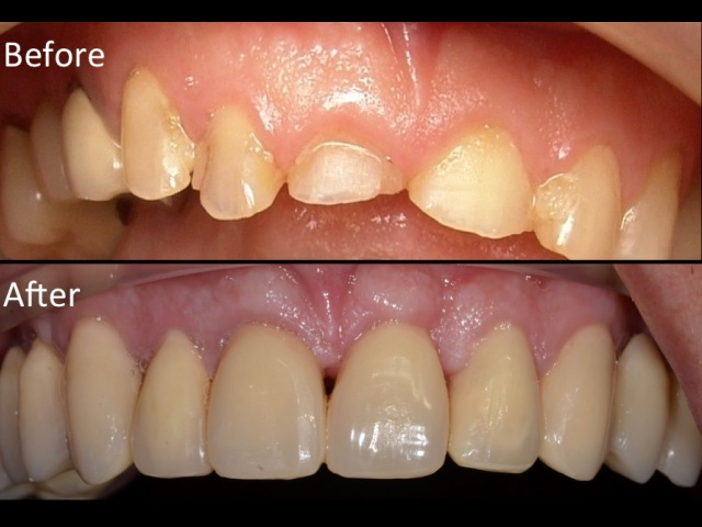 Surgical Crown Lengthening-Upper teeth.Kuljeet MEHTA-Periodontist. www:kmperio.co.uk