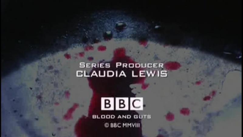 BBC Кровь и внутренности История хирургии 1 В мозг