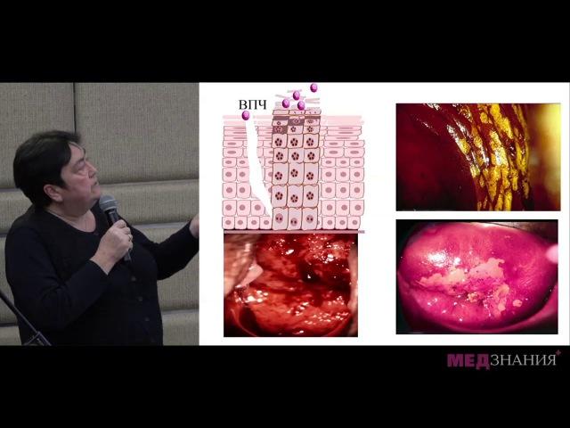 Вагиниты у женщин репродуктивного возраста. Лечение с позиции доказательной медицины