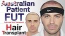 Australian's Hair Transplant Experience | Medispa India 2019 | Dr Suneet Soni