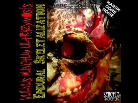 VULNUS PUNCTUM ULTRAZYMOSIS-Epidural Skeletalization-gorenoise-harshnoise (full album)