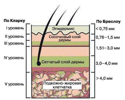 operațiunea de varicoză neinvazivă