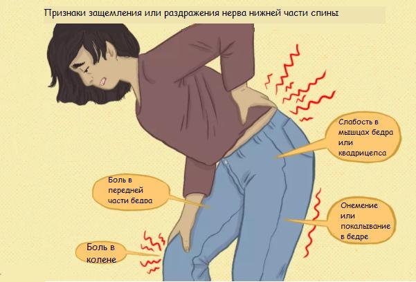 Может ли боль в коленях исходить от позвоночника?, изображение №1