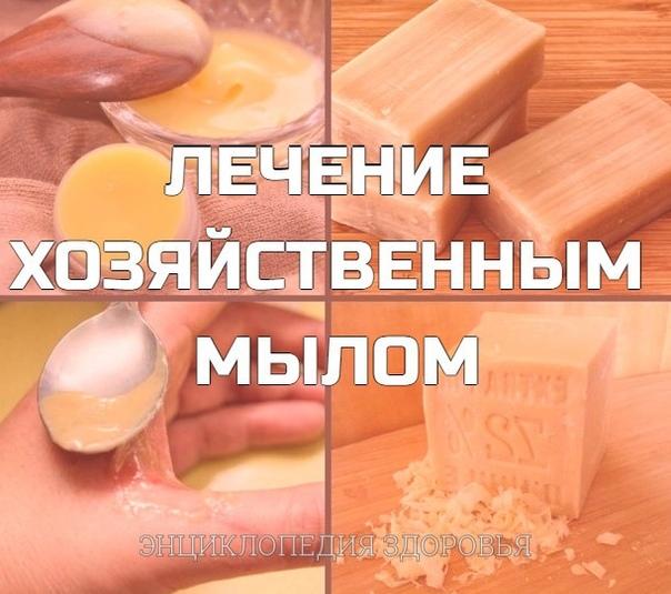 Лечение хозяйственным мылом: то о чем многие не знали