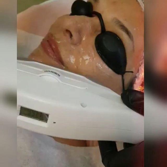 💥 Современная косметология с помощью лазерных технологий позволяет забыть о многих проблемах.