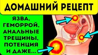 Прополис ЛЕЧИТ ВСЁ! Простатит, язва, геморрой и... Применение и свойства прополиса